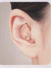 補聴器による耳鳴治療