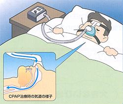 nCPAP療法